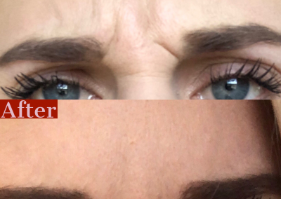 Xeomin Frown Lines - Before & After