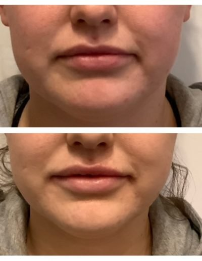 Juvederm Ultra Plus Lip Filler - Before & After