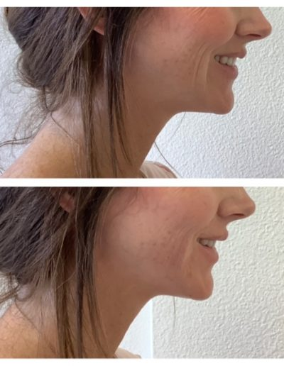 Belotero Facial Lines - Before & After