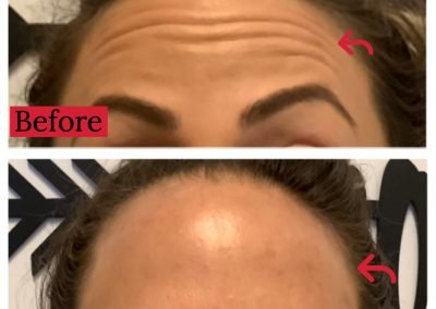 Botox Before and After Forehead Lines