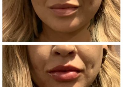 Juvederm Ultra Plus Lips Before and After